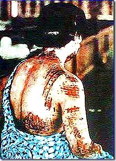 scar of hiroshima victim